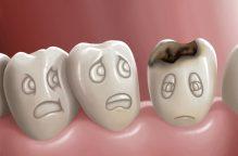 تحذير: «الببرونة» تصيب الأسنان بالتسوس