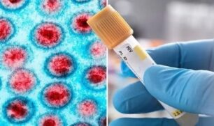 خليط من العقاقير يُشفي مريضاً بالإيدز في البرازيل