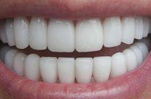 لمرضى السكري.. 7 خطوات للعناية بأسنانكم