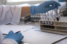 دراسة: المسنون المصابون بـ«السكري» أكثر عرضة للوفاة بـ«كورونا»