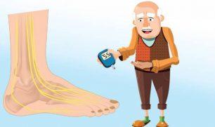 الاعتلال العصبي السكري.. 4 أنواع سببها ارتفاع سكر الدم