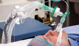 """كيف تنقذ أجهزة التنفس الصناعي مرضى """"كورونا""""؟"""